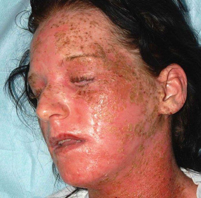 аллергия на краску что делать