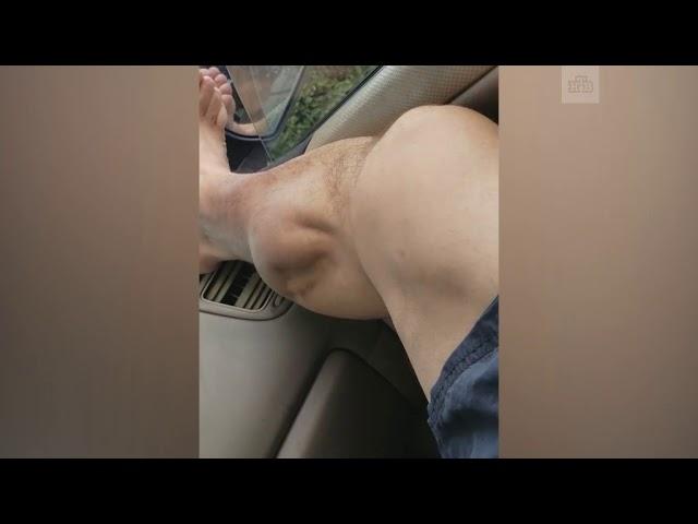 Американец снял на видео судорогу в ноге, как-будто «чужой» сейчас выпрыгнет